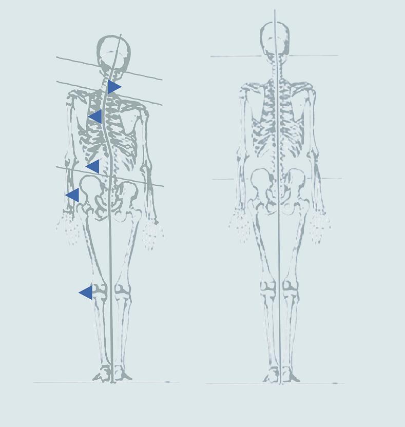 Trauma-Muster - vorher vs. nachher