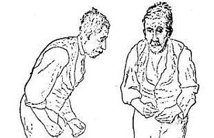 Hypnose Parkinson