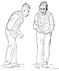 Parkinson Tremor Hypnose